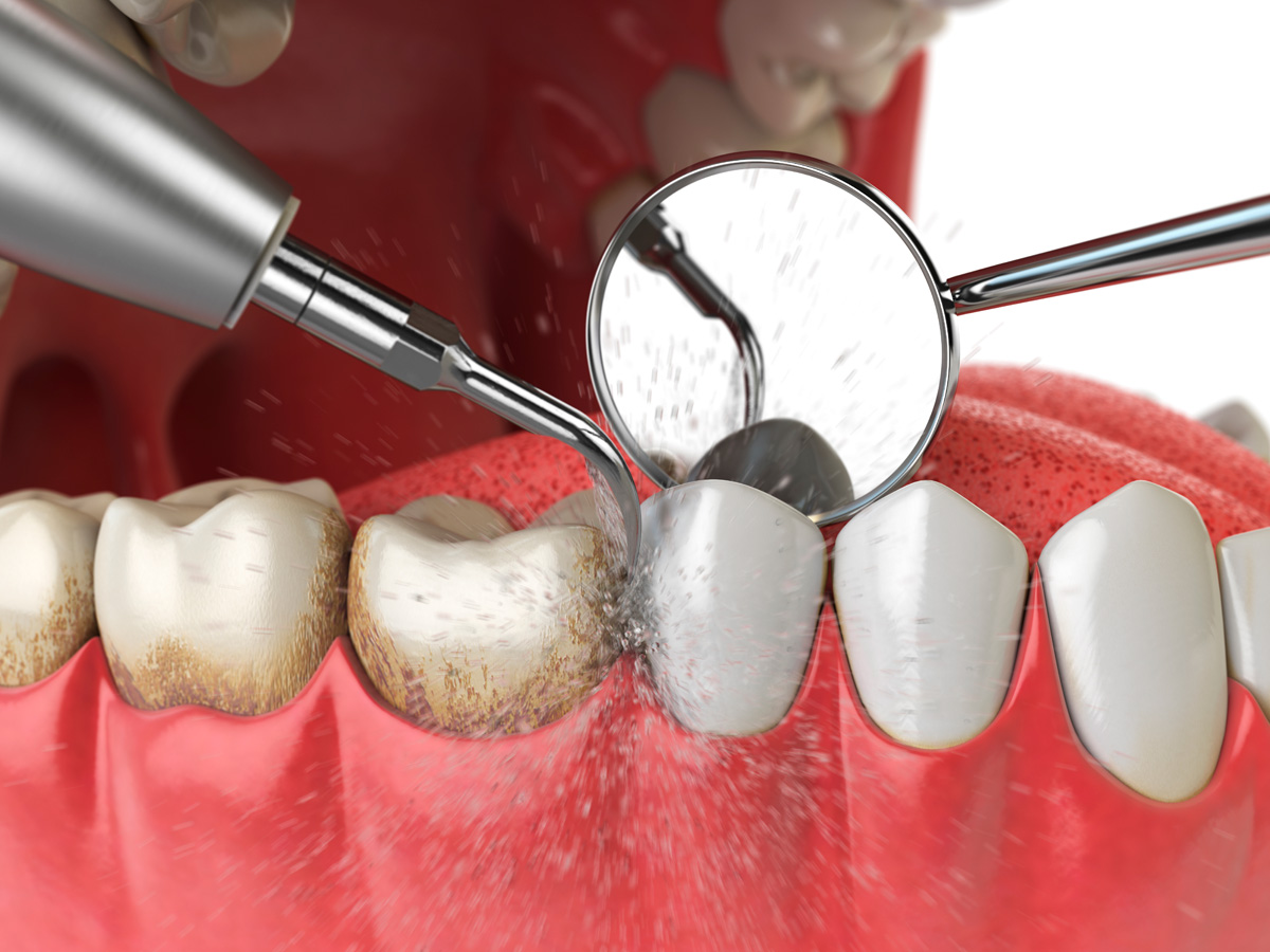 quitar sarro dientes