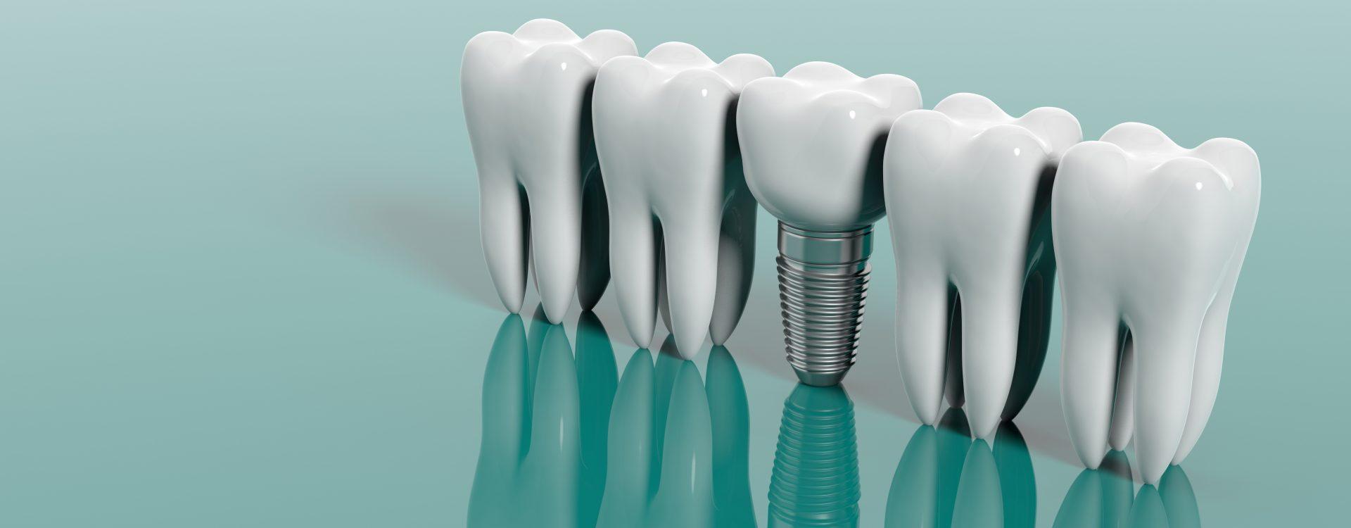 diferencia-entre-implantes-y-protesis-dentales