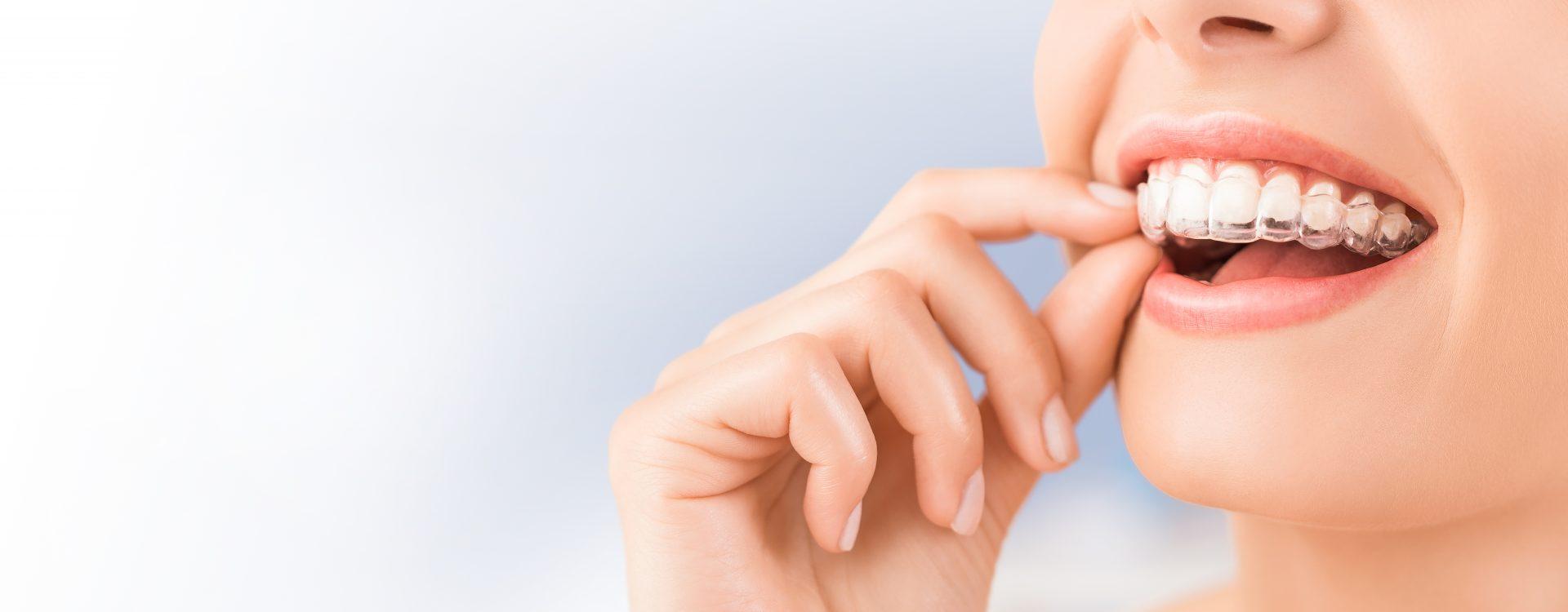 ortodoncia-invisible-ventajas